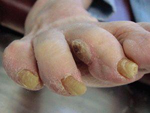 Образование между пальцев