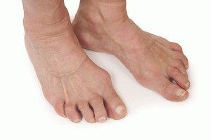 Разрушение хряща ноги