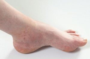 Опухла нога