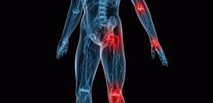 Травма сустава слева