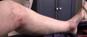 Сгусток крови в ноге