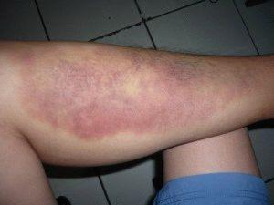 Травма левой ноги