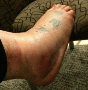 Травма стопы