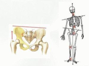 Девиация крестцовой кости