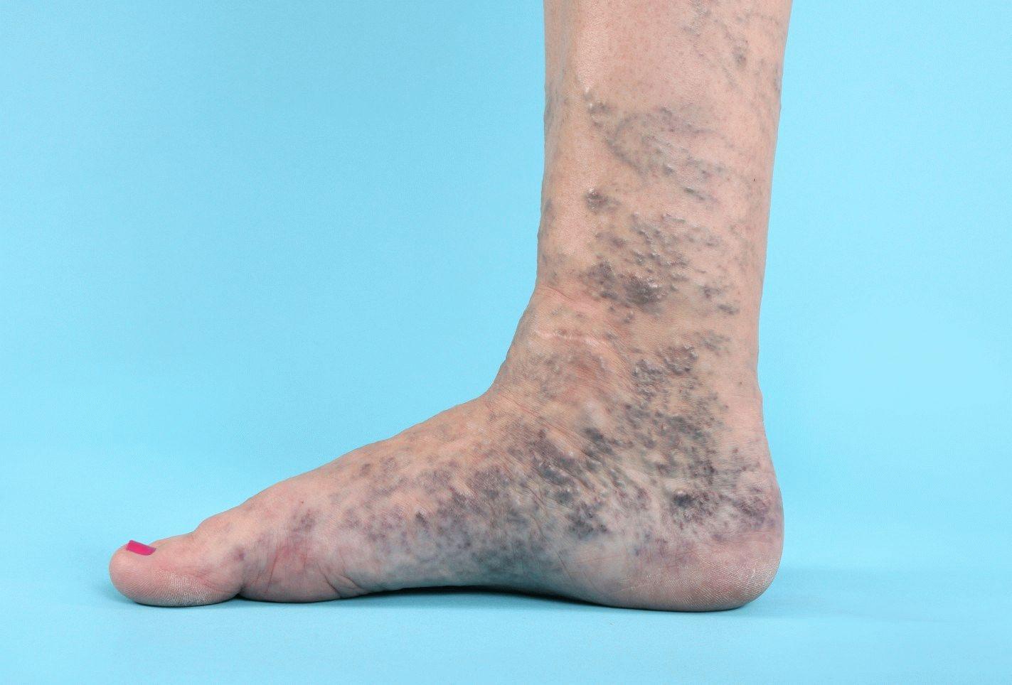 Что делать при варикозе ног