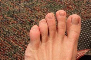 Опух палец на ноге