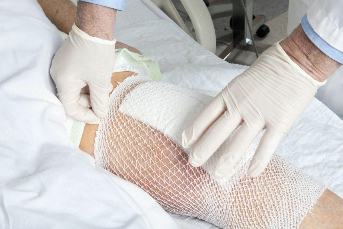Ползала и намяла колено распухло чем лечить операция тазобедренного сустава в красноярске