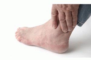 Остеоартроз ног