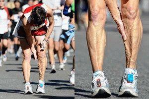 Судорога в икроножных мышцах