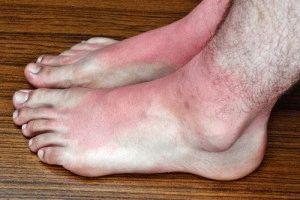 Отёчность ноги