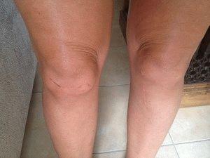 Отекло колено