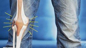 Хруст в коленках