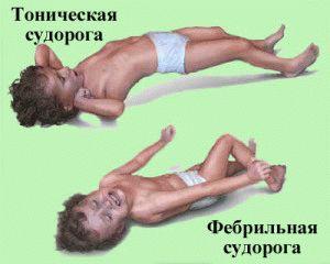 Спазмирование мышечной ткани тела
