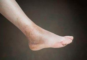 Отёчность голеностопа