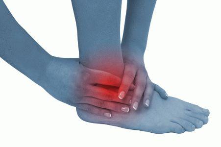 Подвернула ногу в голеностопном суставе что делать дисплазия тазобедренных суставов у рет
