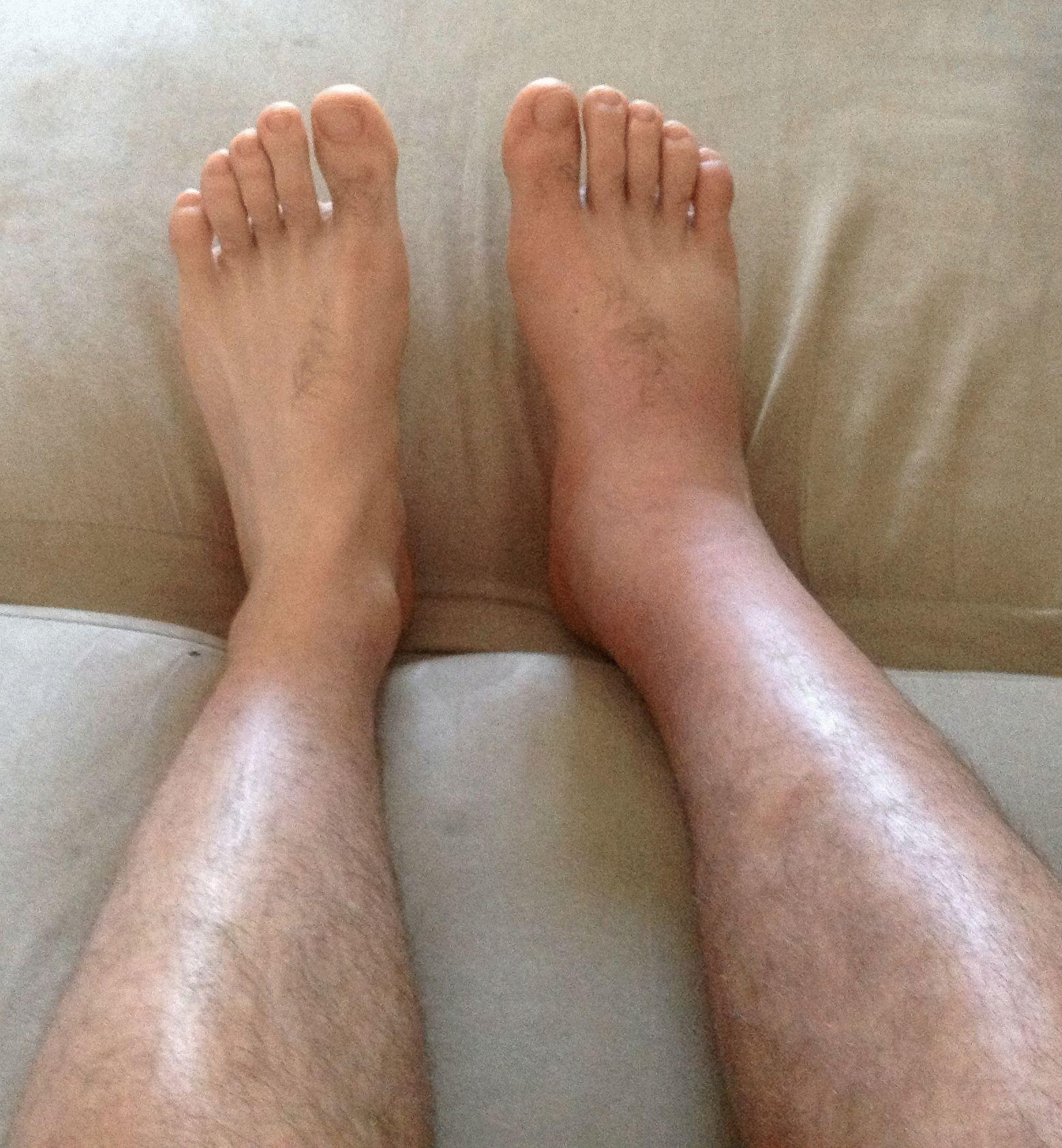 Отчего опухают суставы ног внесуставные поражения при ревматоидном артрите
