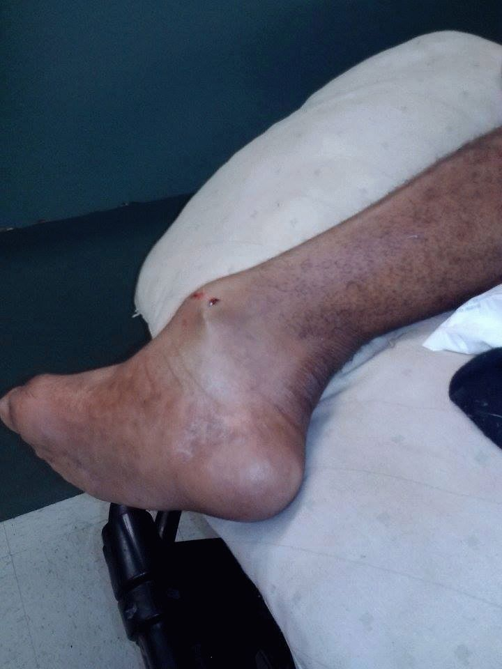 Симптомы проявляющиеся при ушибе большого пальца на ноге