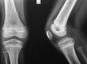 Рентген колена малышу