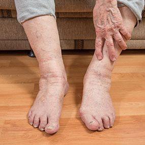 Ревматоидный артрит ног