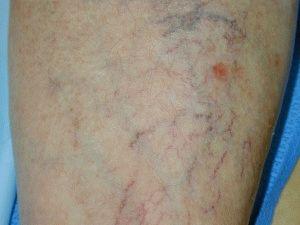 Венозные нарушения в сосудах