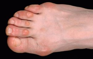 Мозолистые пальцы ног