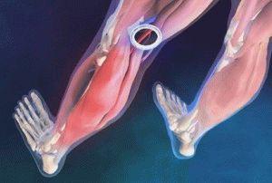 Нарушения в кровообращении ног