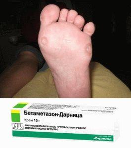 Мазь Бетамезон