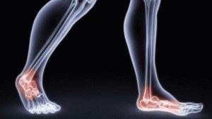 Боли в ступнях