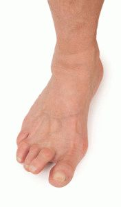 Развитие ревматоидного артрита