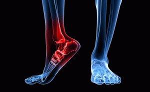 Артрит ног