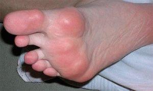 Ревматоидное заболевание