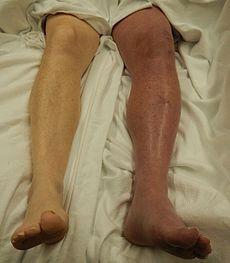 Флегмазия ног