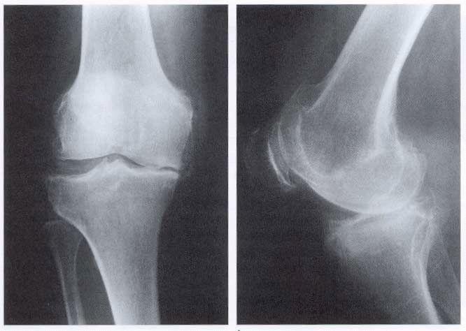 Неоартроз коленного сустава народный способ очищения суставов рисом