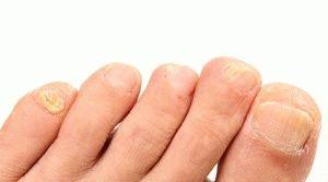 Ломкие ногти ног
