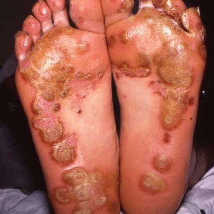 Пиогенен артрит
