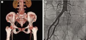 Острый артериальный тромбоз