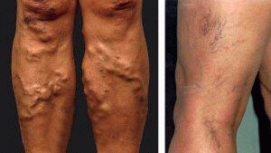 Варикозная болезнь ног