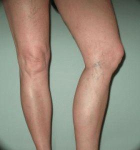 Сосудистые звёздочки на женских ножках