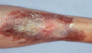 Многочисленные деформации кожи