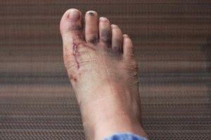 Ушиб пальцев ног