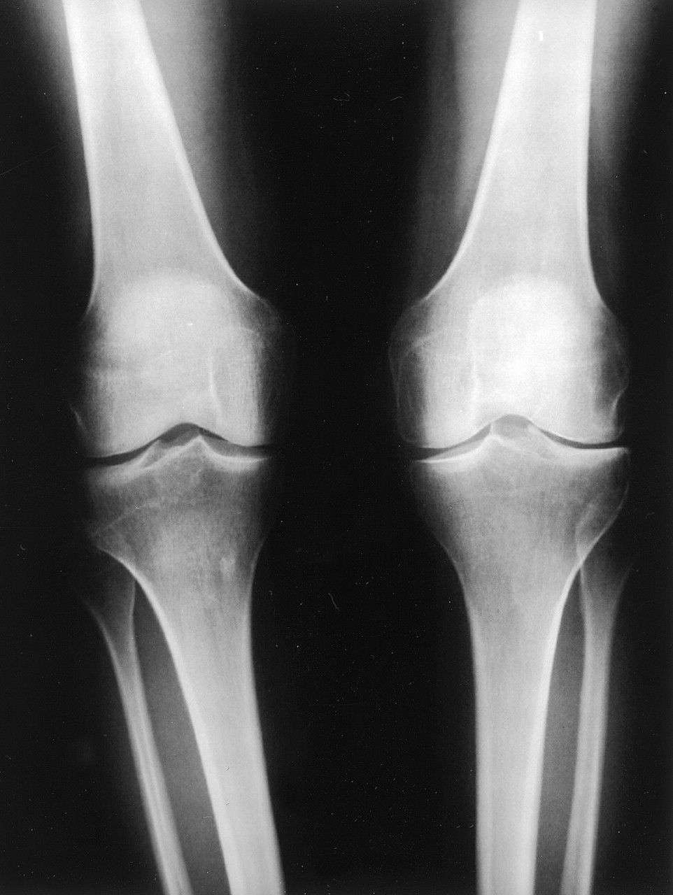 Лечение остеоартроза коленного сустава 2 степени причины и симптомы заболевания