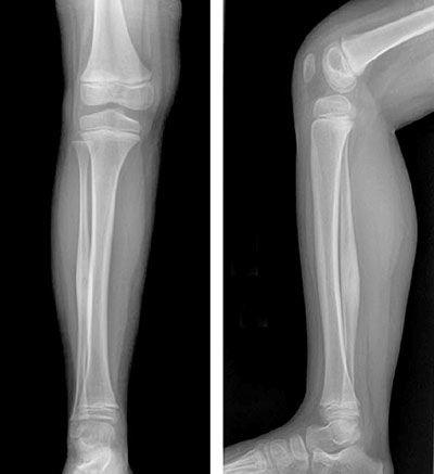 Трещина сустава ноги если ломят суставы на руках