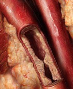 Атеросклероз в ногах