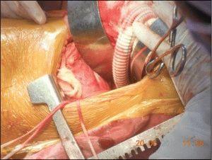 Шунтирование в хирургии