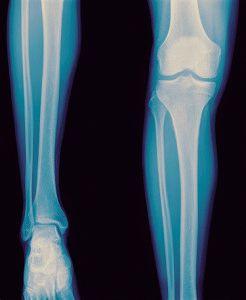 Рентген ноги