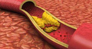 Атеросклероз в сосудах ног