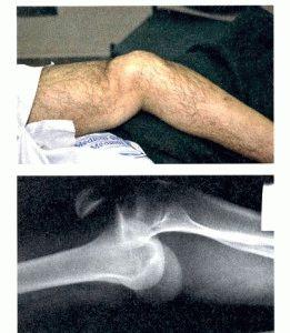 Вывих сустава ноги