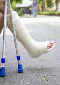 Гипс при переломе