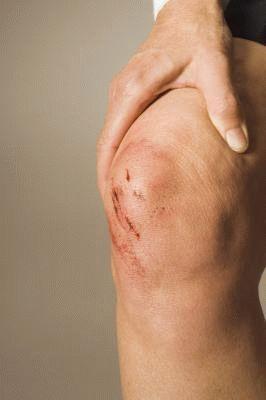 Трещина чашечки коленного сустава симптомы суставная гимнастика при артрозе плеча