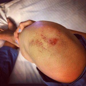 Сильная травма колена
